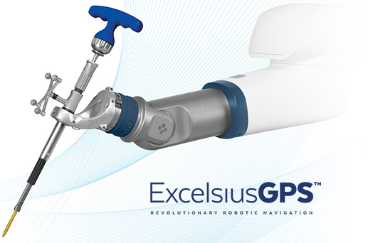 ExcelsiusGPS Robotic Navigation Spine